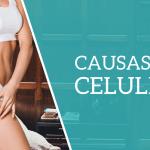 O que Causa Celulite?